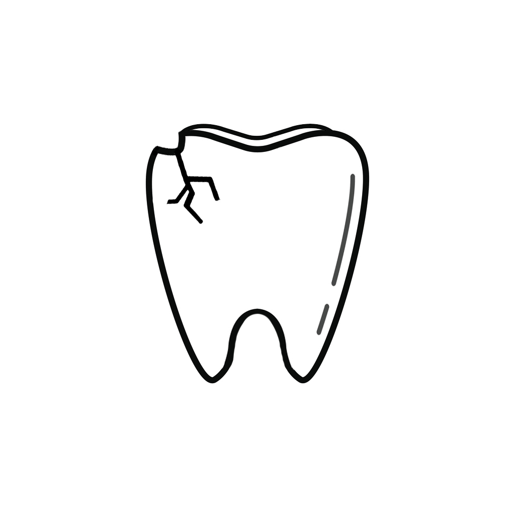 I Chipped a Tooth! What Can I Do? | West Houston Dentist